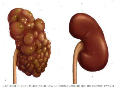 Polycystická choroba ledvin autozomálně dominantního typu